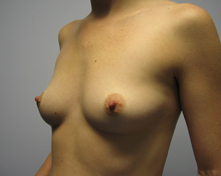 breast enhancemen with saline implants Los angeles