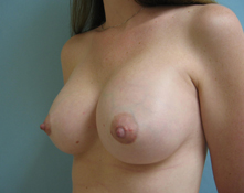 saline implants Los Angeles