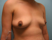 california breast augementation
