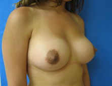 California breast enlargement