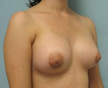 breast implants los angeles