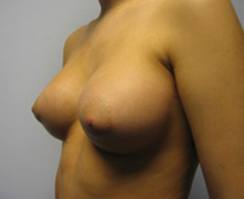 breast enlargement after photo