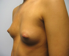 breast implants before photo