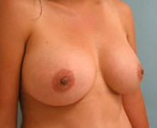 beverly hills breast enhancement