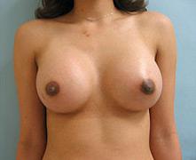 breast augmentation glendale