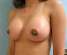 glendale breast enlargement