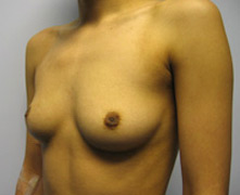 breast augmentation glendale