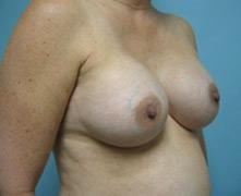 breast enlargement pasadena