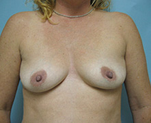 breast enlargement pasadena