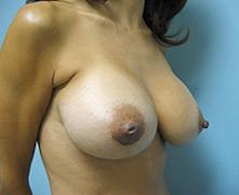 Breast enlargement Simi Valley
