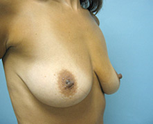 Simi Valley breast augmentation
