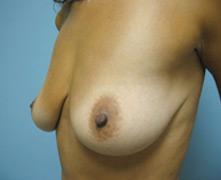 Thousand Oaks breast enlargement
