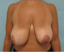 breast lift in los angeles