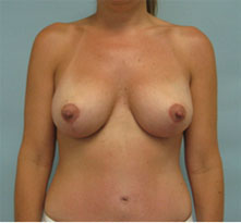 breast revision glendale pasadena