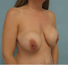 breast revision surgery beverly hills