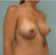 breast revision surgery pasadena