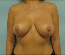 pasadena breast lift