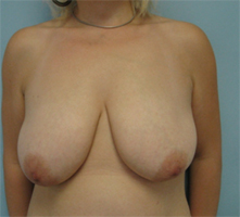 breast lift glendale