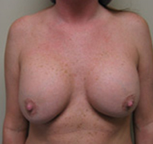 los angeles breast lift