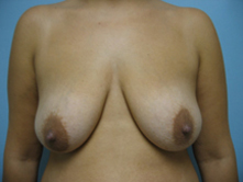 breast lift pasadena