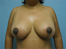 encino burbank breast lift