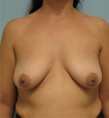 beverly hills breast lift