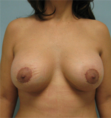 breast lift beverly hills