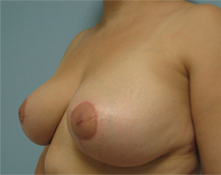 california breast lift