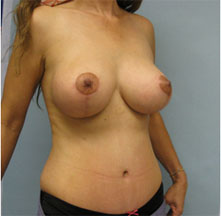 breast lift los angeles