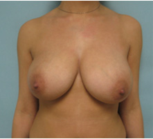 breast reduction los angeles