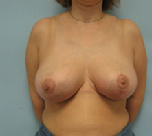 breast reduction beverly hills, pasadena Glendale