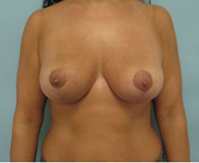 Los Angeles Breast Reduction