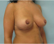 Pasadena Breast Reduction