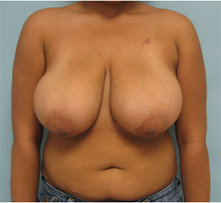 breast reduction Burbank