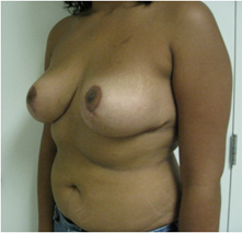 bakersfield breast reduction