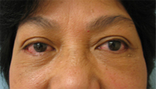 beverly hills eyelid surgery