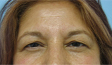 eyelid lift los angeles