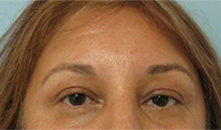 eyelid lift surgery los angeles