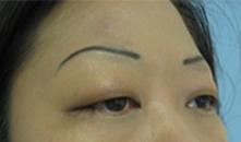 Asian double eyelid surgery glendale, la crescenta montrose, monrovia, arcadia