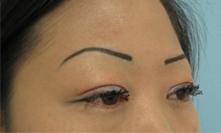 Monrovia, arcadia, pasadena glendale asian double eyelid surgery