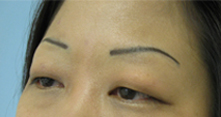 asian double eyelid surgery beverly hills, encino burbank, la canada