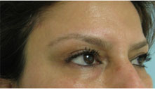 eyelid lift beverly hills
