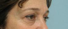 eyelid surgery glendale pasadena