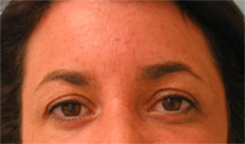 los angeles eyelid lift