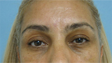 pasadena brow lift