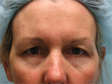 brow lift pasadena