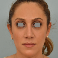 Dr Grigoryants nose job