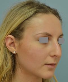 Dr Vladimir Grigoryants nose surgery