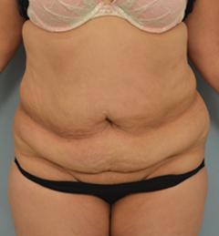 Dr Grigoryants lipoabdominoplasty