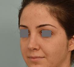 Dr. Grigoryants endonasal rhinoplasty